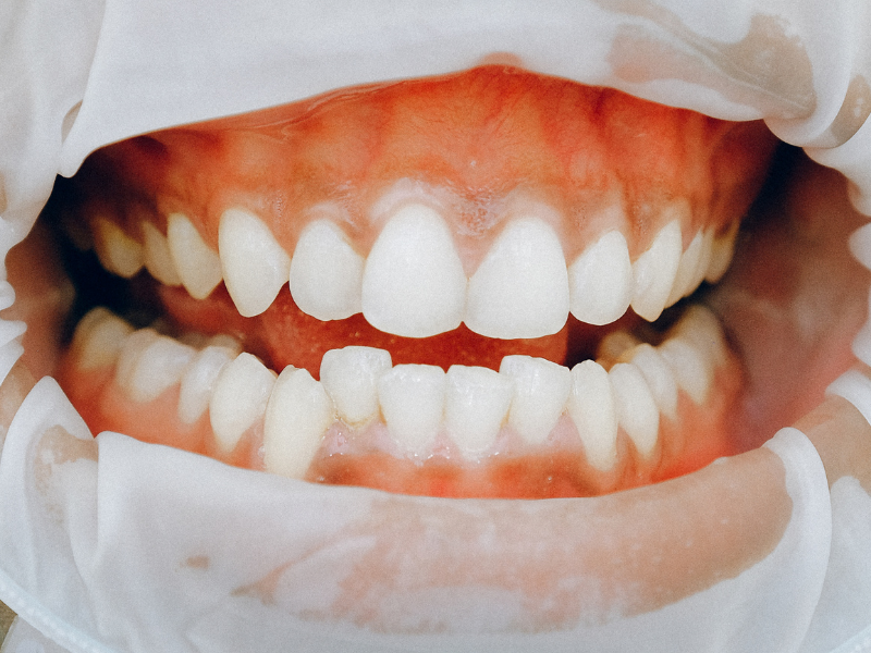 Dentist in Katy, TX - The Tooth Booth