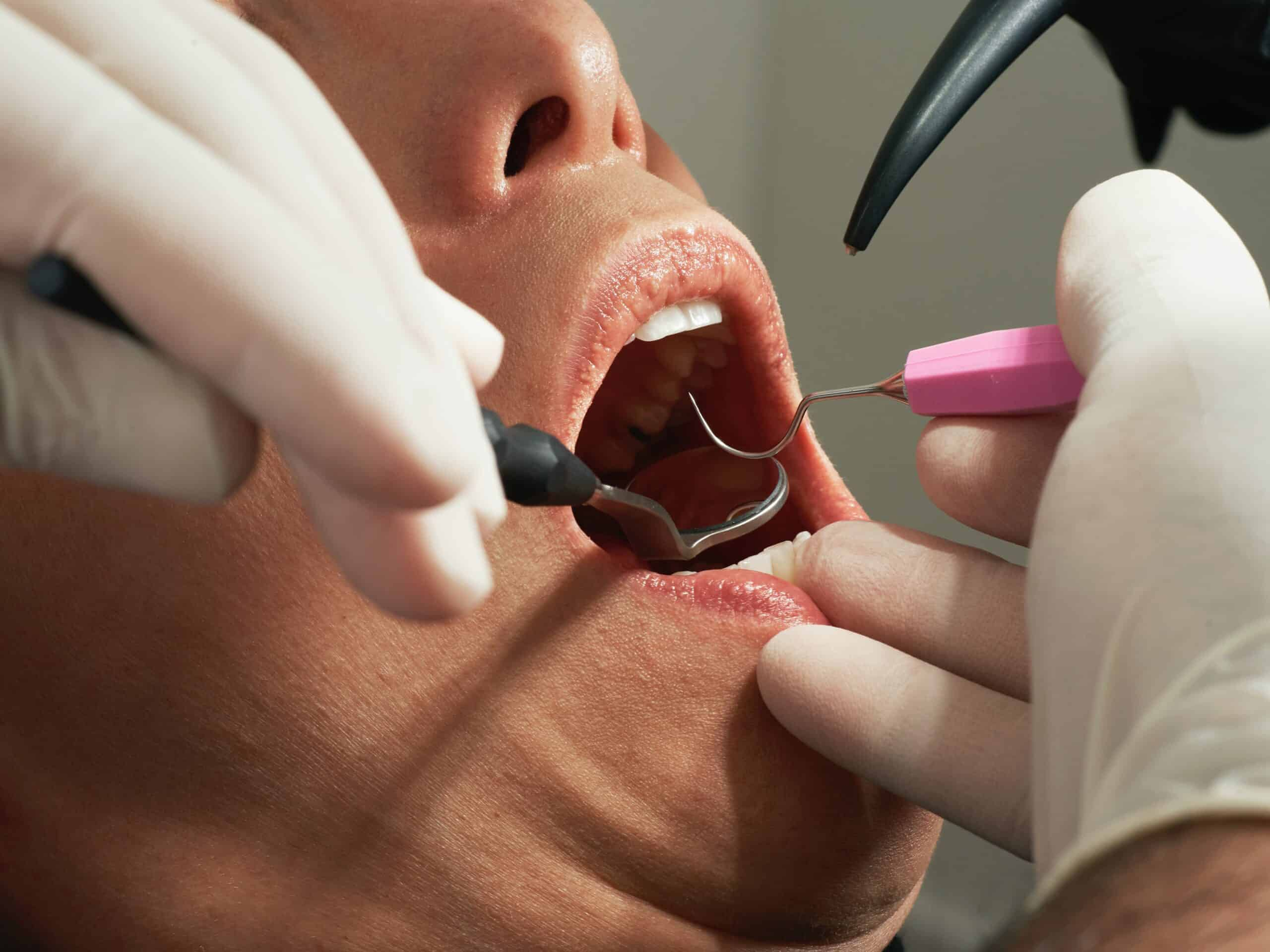 Family dentistry oral cancer screening - Tooth Booth Family & Cosmetic Dentistry