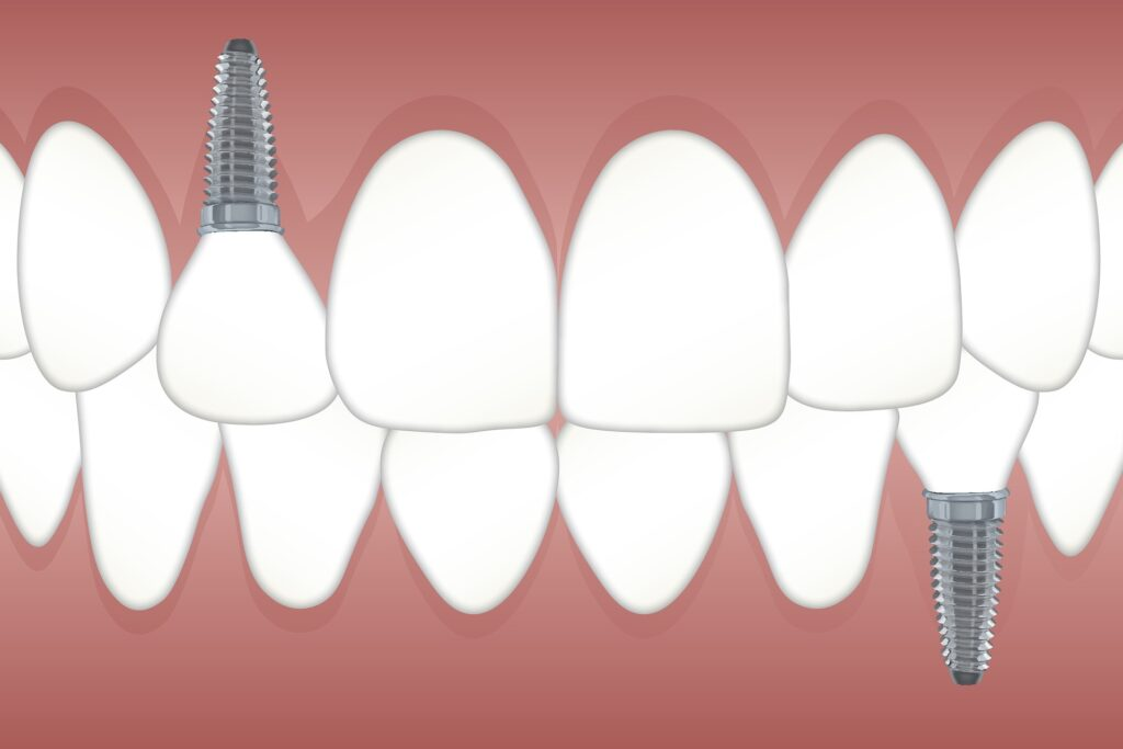 teeth with two dental implants from dentist