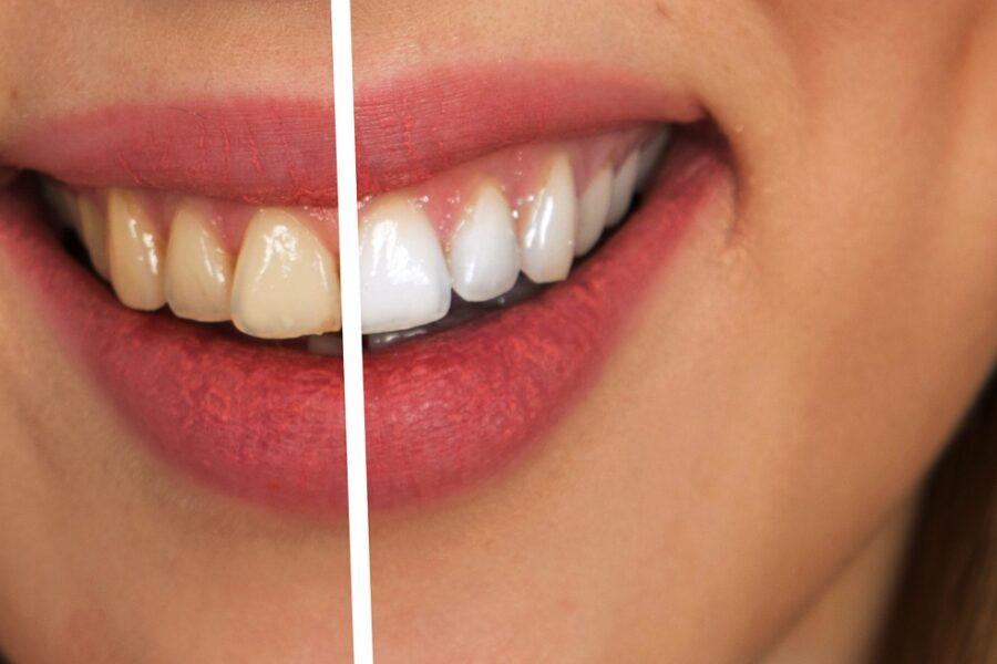 Yellow versus white teeth after visiting dentist in Katy, TX for teeth whitening services